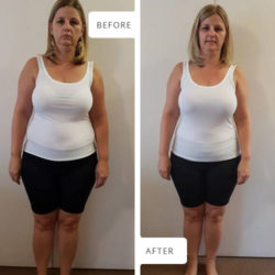Front view Before and After photographs of Lillie Pretorius