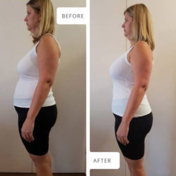 Side view Before and After photographs of Lillie Pretorius