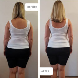Before and After photographs of Lillie Pretorius: view from behind