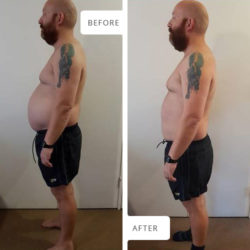 Side view Before and After photographs of Werner Pretorius